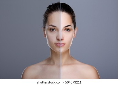 Comparison portrait of woman. Divided face of woman with perfect skin. One half of face without  retouch, before. Another half of face with retouch, after. Studio, head and shoulders, indoors