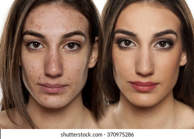 Comparison portrait of a woman with problematic skin without and with makeup