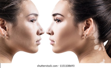 Comparison portrait of young woman with and without makeup. Close-up shot.