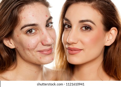 comparition portrait of same woman before and after cosmetic treatment amd makeup on white background