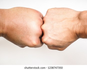 Compering swollen male hands knuckles on knuckles