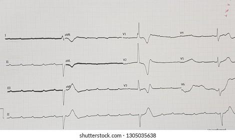 Complete heart block with ventricular escape rhythm. Sinus rachycardia.