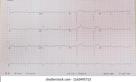 Complete heart block.Third degree AV block. Infranodal block.