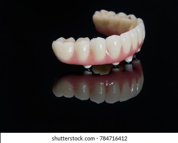 Complete lower prosthesis dental screwed over black glass.