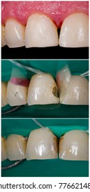 Composit aesthetic dental filling, after - meanwhile - before