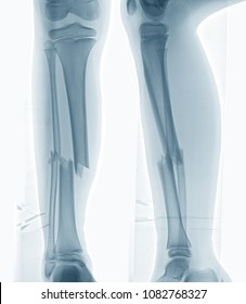 Computed radiography of broken leg,a 9 year old football player