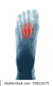 Computed radiography (CR) of foot, AP (anteroposterior) view, showing the second and third metatarsal bone fractures