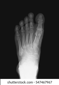 Computed radiography (CR) image of foot, AP (anteroposterior) view, showing the first metatarsal fracture