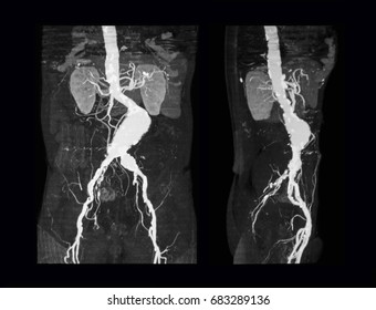 Computed tomography angiography (CT Angiography or CTA) of abdominal aorta, case of abdominal aortic aneurysm, prone view (left) and lateral view (right)