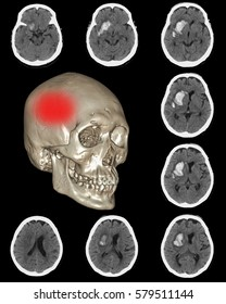 Computed tomography (CT) of brain : right basal ganglia hemorrhage , The red dots pointing in area at right side.