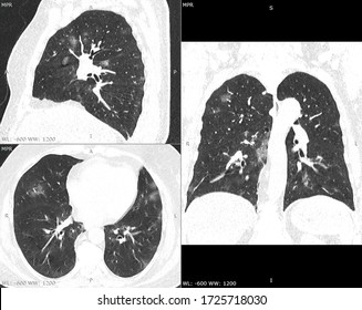 Computed tomography scan in a patient with a moderate pneumonia caused by SARS-CoV-2 (Covid-19)