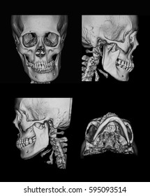 Computed tomography(CT scan) of facial bone 3D, case of facial asymmetry, a 56 year old female