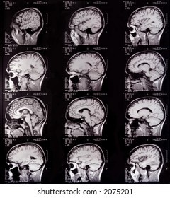 Computer Aided Magnetic Tomography of head, lateral view.