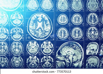 Computer head tomography, X-Ray brain or scull scan image, blue light effect, neurology concept