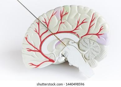 Concept of brain wave recording in Parkinson disease surgery. Microelectrode recording in midbrain. Brain model on white background.