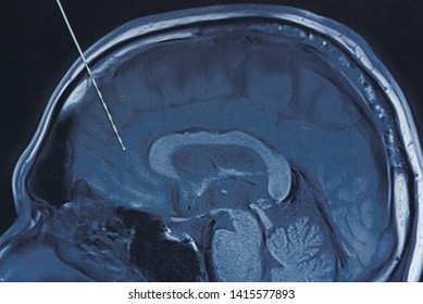 Concept of brain wave recording using depth electrode in epilepsy surgery. Depth electrode on brain MRI imaging.