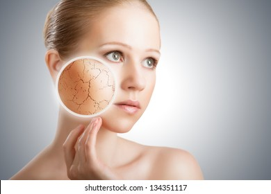 concept of cosmetic effects, treatment and skin care.  face of young woman with dry skin - Shutterstock ID 134351117