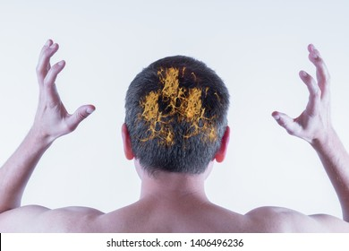 Concept of an extremely itchy and burning scalp in a man