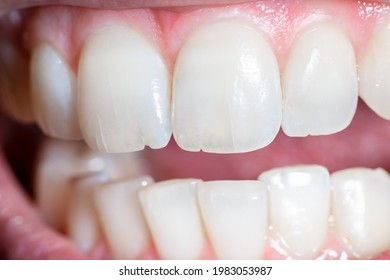 Concept of microfractures on the dental surface. Slight superficial dentin crack. Damage to the tooth due to incorrect chewing, very hard food or bruxism.