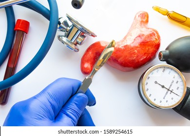 Concept photo of stomach or gastric surgery. Doctor with scalpel in his hand makes an incision in figure of human stomach, which is located near medical toolkit - stethoscope , lab tube with blood