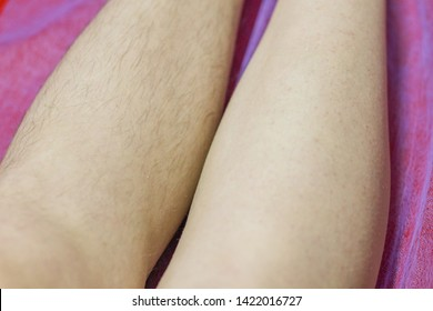 The concept of shugaring. Hair removal procedure with sugar paste