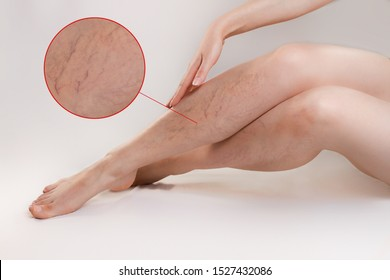 The concept of varicose disease and cosmetology. The woman gracefully crosses her legs with vascular stars, runs her hand over them. The enlarged image of blood vessels