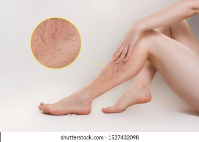 The concept of varicose disease and cosmetology. The woman sits gracefully setting aside her legs with vascular stars, and runs her palm over the skin. The enlarged image of blood vessels