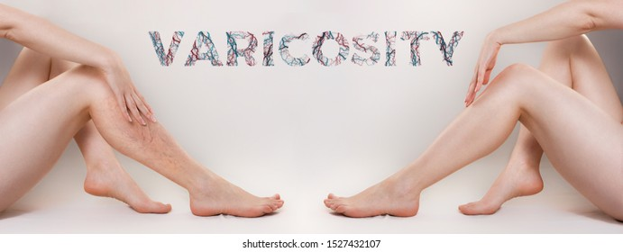 The concept of varicose disease and cosmetology. The woman sits with her legs gracefully apart and runs her hand over her skin. Before and after. Text VARICOSITY