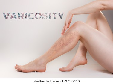 The concept of varicose disease and cosmetology. The woman sits gracefully setting aside her legs with vascular stars, and runs her palm over the skin. Text VARICOSITY. Copy space