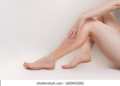 The concept of varicose disease and cosmetology. The woman sits gracefully setting aside her legs with vascular stars, and runs her palm over the skin. Copy space