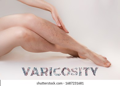 The concept of varicose disease and cosmetology. The woman gracefully crosses her legs with vascular stars, runs her hand over them. Text VARICOSITY