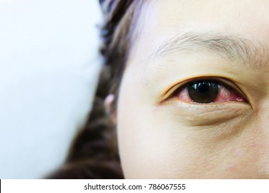 Conjunctivitis Causes of inflammation of the conjunctiva from viral.virus in the dirty water splashed into the eyes. Especially in the children.Red eye, tears, eye pain, eye irritation, eye irritation