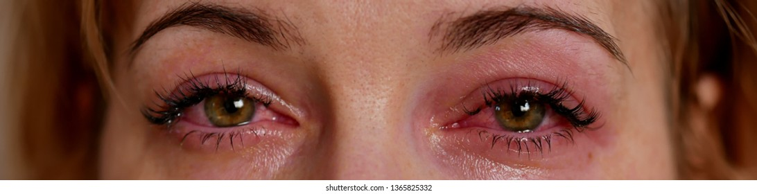 conjunctivitis, inflammation of the eyes. Eyes close up