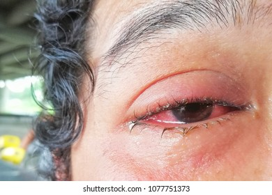 conjunctivitis with pink eye symptoms.