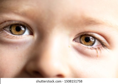 Conjunctivitis in a small child. Dried discharge from the eye on the eyelashes.