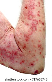 Contact dermatitis causes a severe skin rash on the arm of a caucasian male, with many sores and lesions.