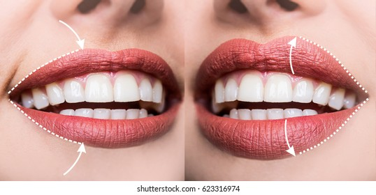 Contour plastic, augmentation of the lips, filling wrinkles, changing shape volume of lips, rejuvenating upper lip. Injections of hyaluronic acid for sexy lips. Beauty Salon or Plastic Surgeon