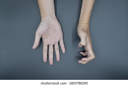 Volkmann's contracture in left hand of Southeast Asian young man. It is a permanent shortening of forearm muscles that gives rise to a clawlike abnormality of the hand, fingers, and wrist.