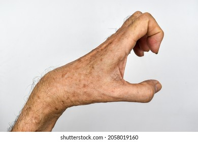 Volkmann's contracture in left upper limb of Southeast Asian elder man. It is a permanent shortening of forearm muscles that gives rise to a clawlike posture of the hand, fingers, and wrist.
