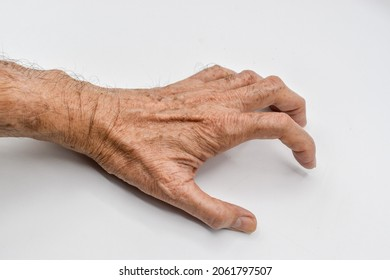 Volkmann's contracture in upper limb of Asian old man. It is a permanent shortening of forearm muscles that gives rise to a clawlike posture of the hand, fingers, and wrist.