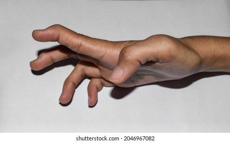Volkmann's contracture in upper limb of Asian young woman. It is a permanent shortening of forearm muscles that gives rise to a clawlike posture of the hand, fingers, and wrist.