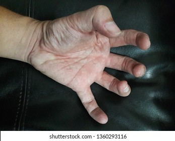 Convulsive seizures and spasms at the hands
