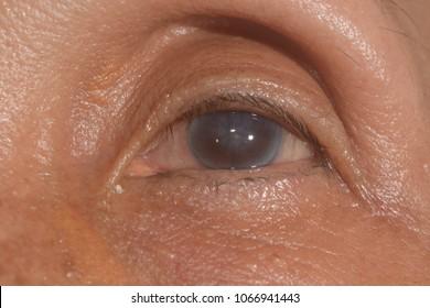 corneal edema endothelial dysfunction