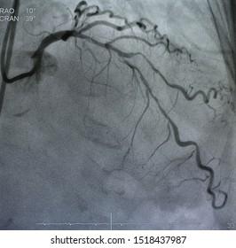 coronary angiogram was perform left coronary artery (LCA) disease, left anterior descending artery (LAD) stenosis