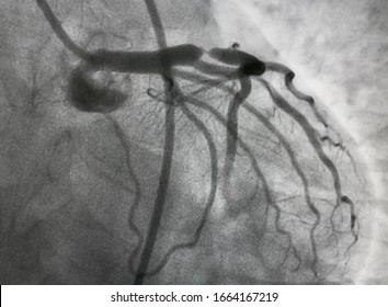 Coronary angiogram shown proximal stenosis and thrombus occlusion at mid of left anterior descending artery (LAD) in STEMI patient
