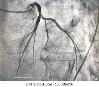 Coronary angiogram shown that left coronary stenosis.
