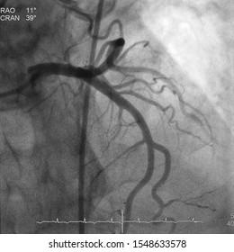 Coronary artery angiogram (CAG) was performed normal left coronary artery (LCA)