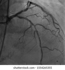 coronary artery angiogram (CAG) was performed left anterior descending artery stenosis (LAD)