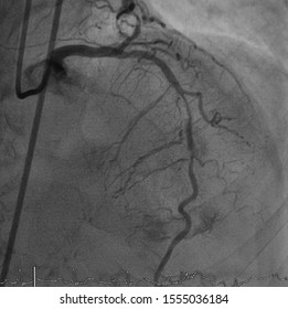 coronary artery angiogram (CAG) was performed mid part of left anterior descending artery (LAD) stenosis