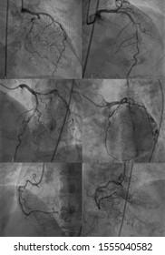 coronary artery angiogram (CAG) was performed tripple vessel disease (TVD), all of coronary artery stenosis